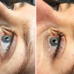 beforeafter-lashlift-1024×815